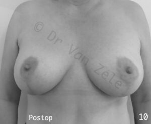 borst-vergroting-lift-pexie-seins-augmentation-breast
