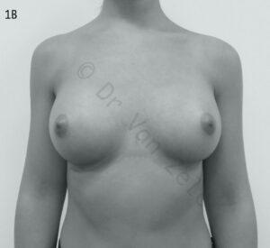 dokter vanzele, borstvergroting, breast augmentation, augmentation mammaire