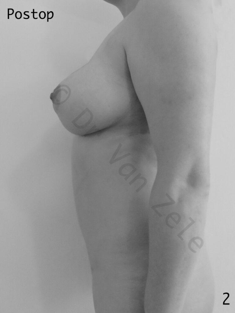 van-zele-buikwand-abdominoplstie-tummy-tuck