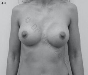 van-zele-borst-vergroting-breast-augmentation-mammaire