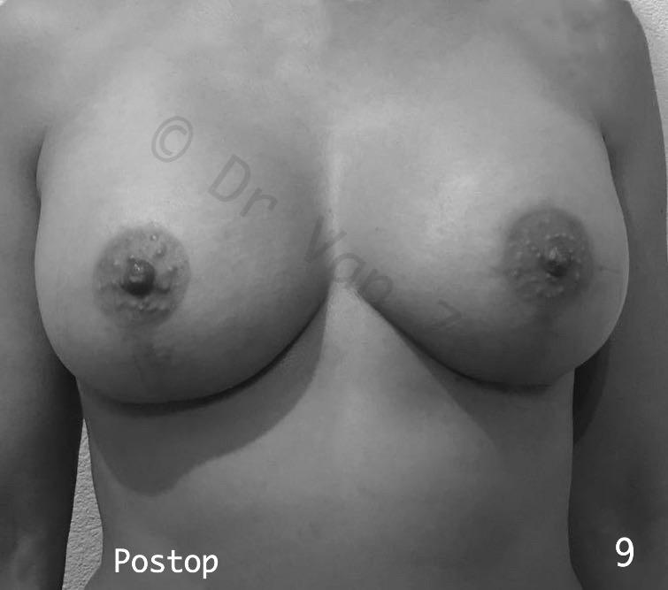 borst-vergroting-lift-pexie-seins-augmentation-breast